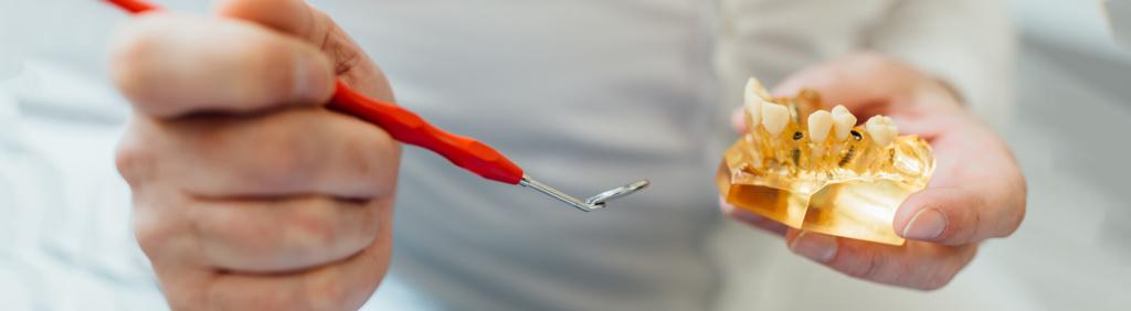 Zahnarzt Puchheim - Gebala - Implantate