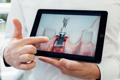 Zahnarzt Puchheim - Gebala - Implantate aus Titan