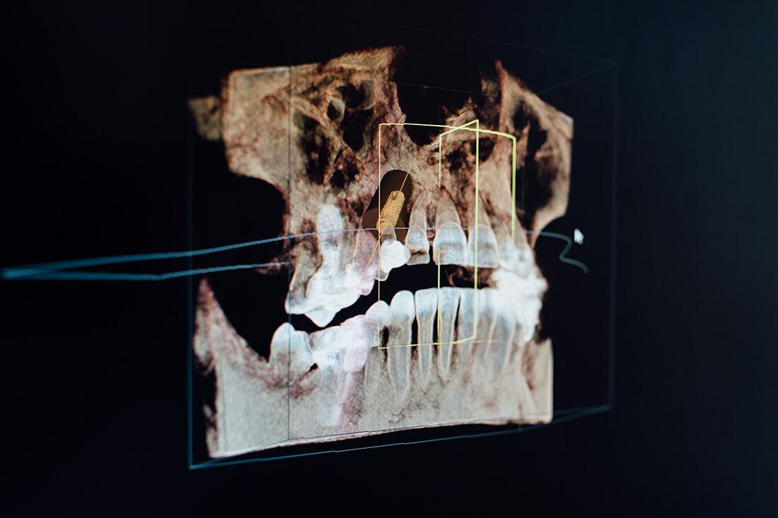 Zahnarzt Puchheim - Praxis Dr. Gebala - Röntgenaufnahme