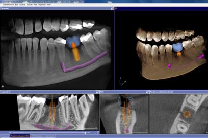 Puchheim-Gebala-Implantologie